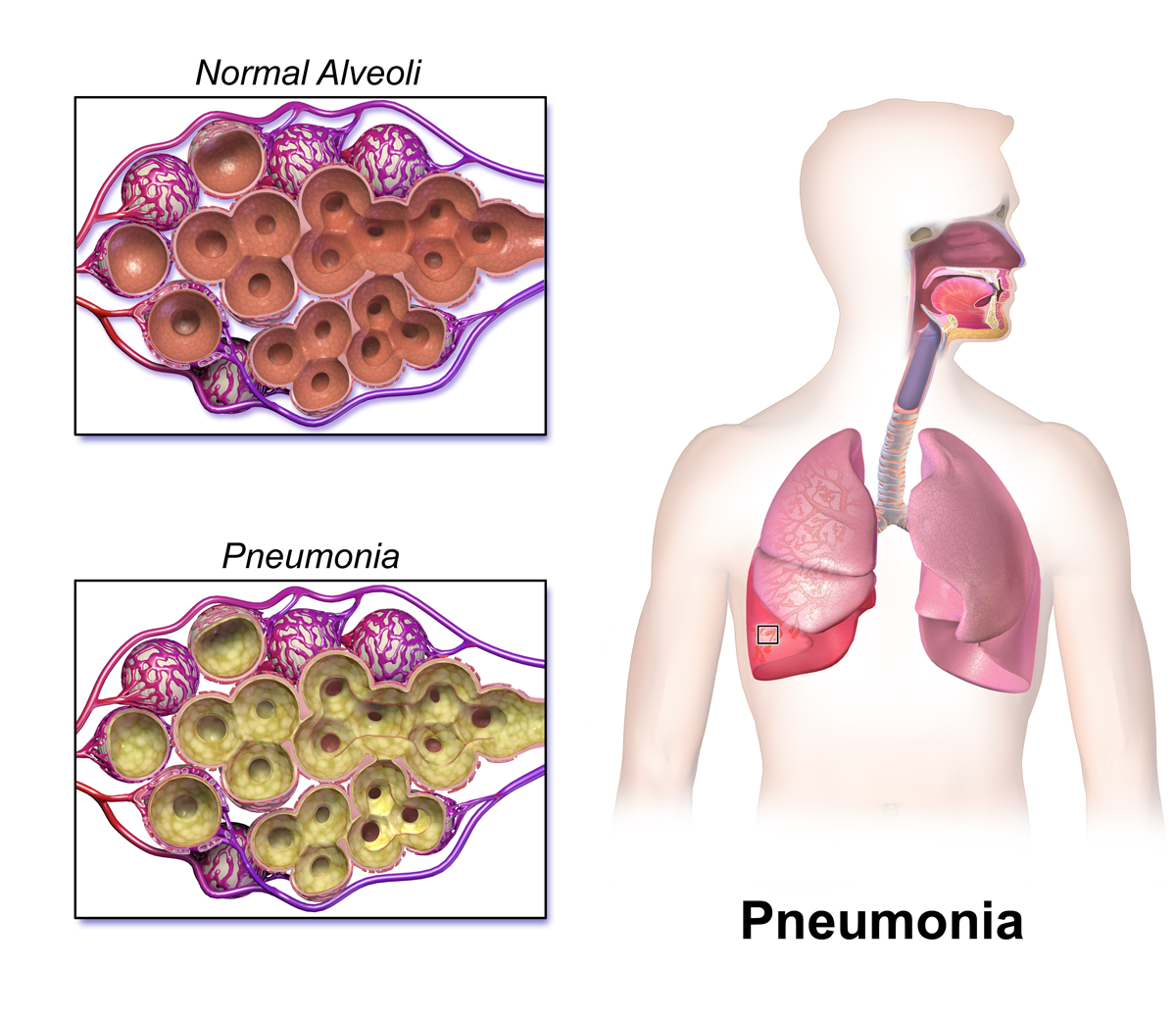 Difference Between Covid Pneumonia and Bacterial Pneumonia