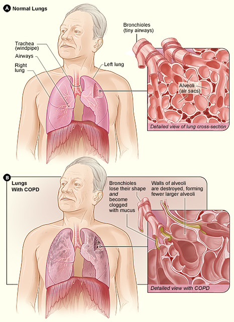 Difference Between Asbestosis and Chronic Obstructive Pulmonary Disease (COPD)