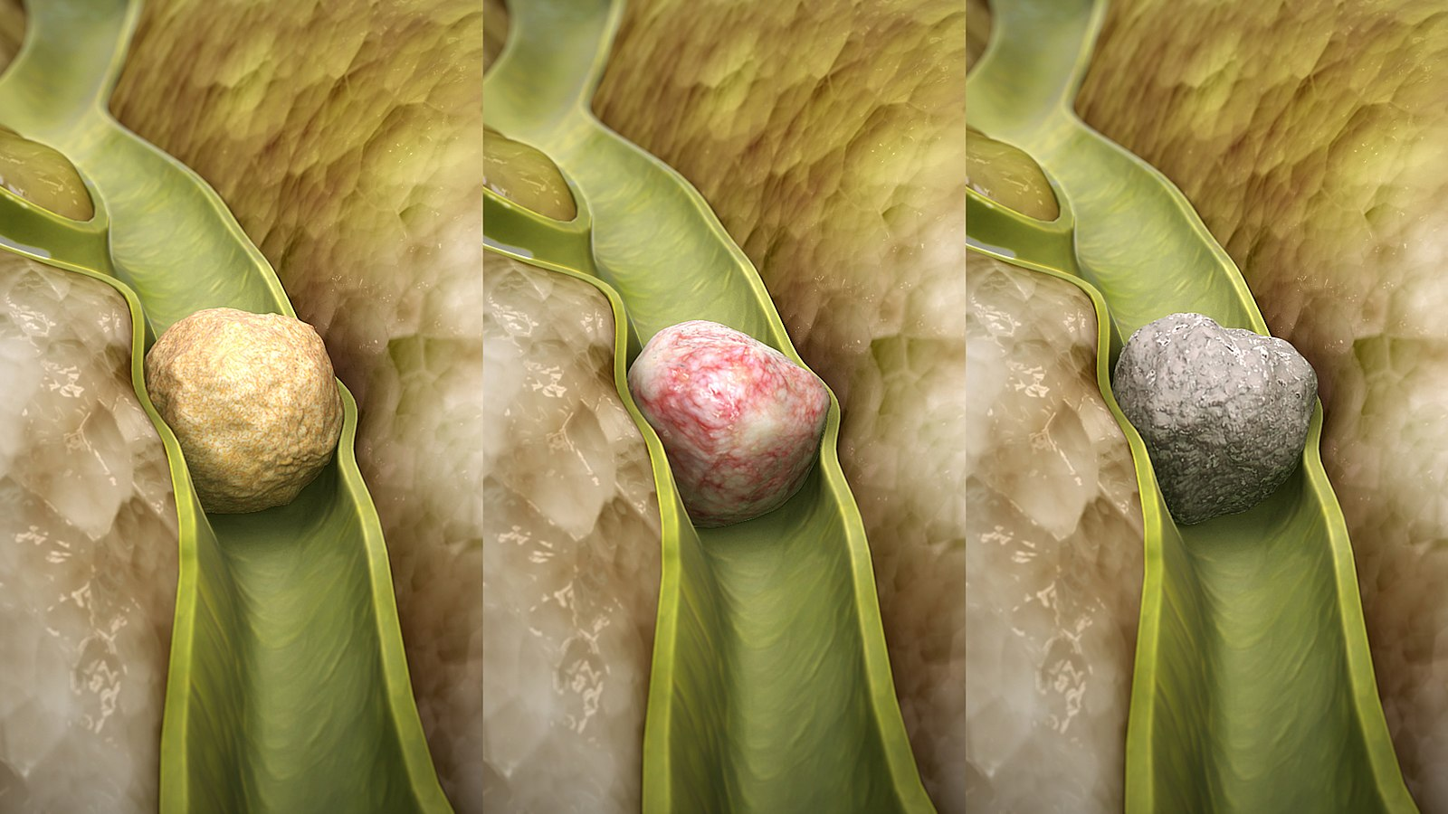 Difference Between Gallstones and Appendicitis
