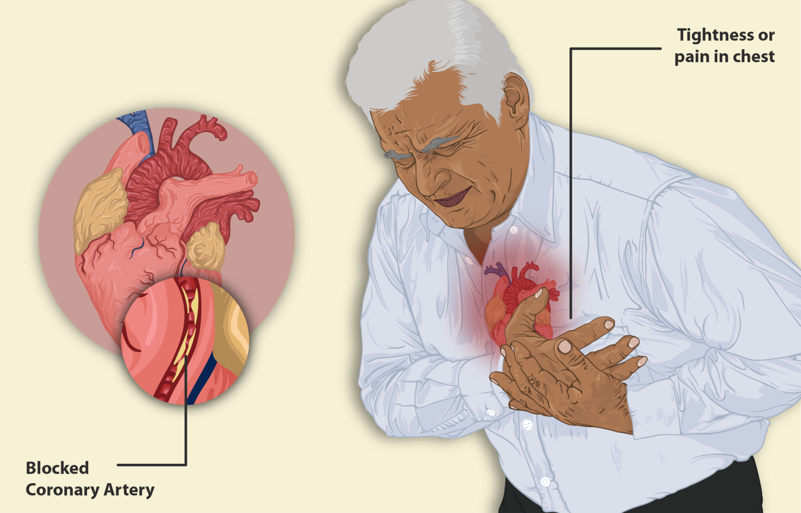 Difference Between Heart Attack and Heart Failure