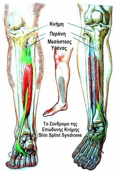 Difference Between Shin Splint and Stress Fracture