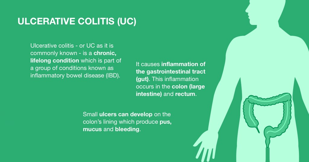 Difference Between Irritable Bowel Syndrome (IBS) and Ulcerative Colitis