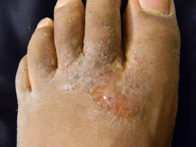 Difference Between Covid Toes and Athlete's Foot