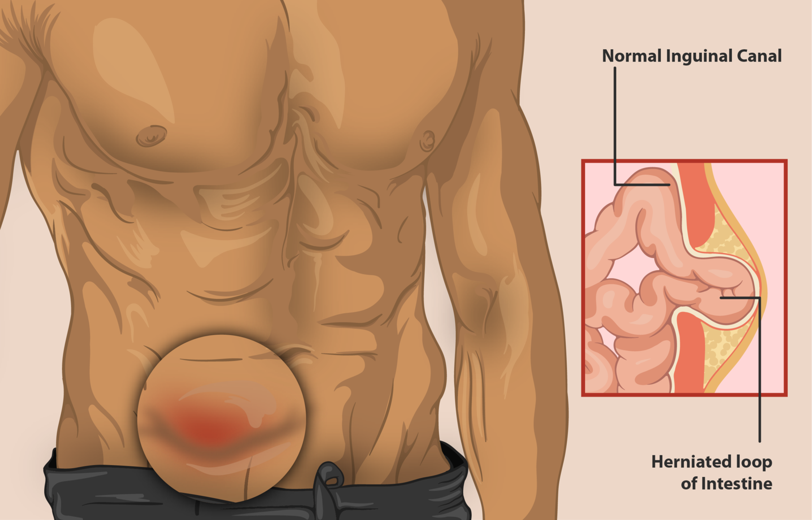 Difference Between Hernia and Ulcer