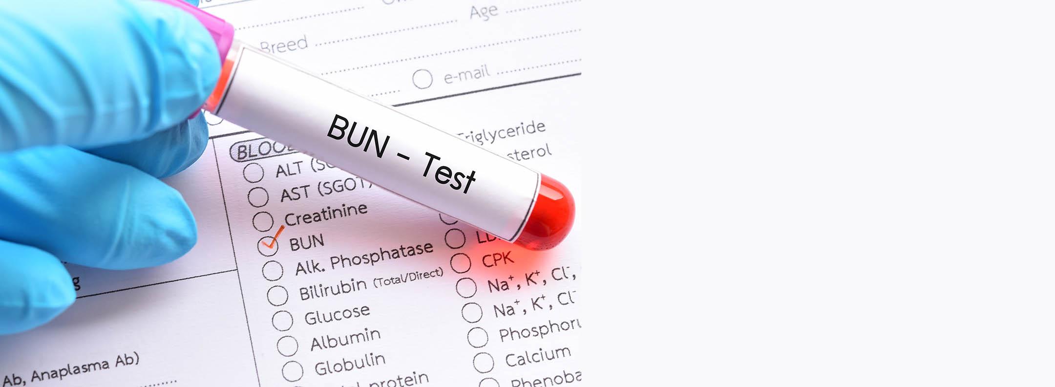 Difference Between Blood Urea Nitrogen BUN and Creatinine