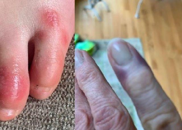 Difference Between Covid Toes and Gout